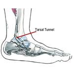 Tibialis posterior nerve compression