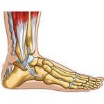 Torn Achilles tendon