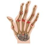 Reuma in de hand