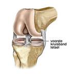Front cruciate ligament injury knee brace