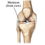 meniscusletsel