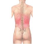 Non-specific back problems