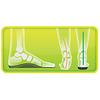 Footlogics Einlegesohlen für den Sport - Arch unterstützt für den Sport!