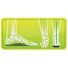 Footlogics Inlegzolen voor Sporten - Steunzolen voor sport!