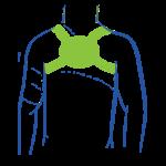 Rückenhalter