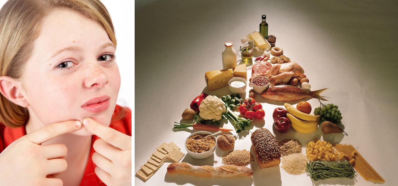 Krijg je acne van gluten?