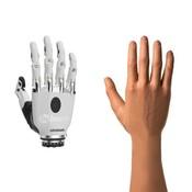 Otto Bock Bebionic Myo Elektrische handprothese