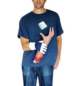 afgehakt hand