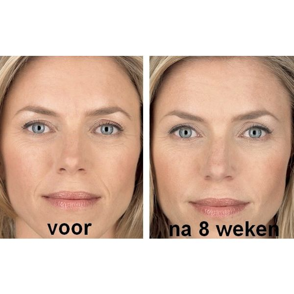 Wrinkle Stop Face anti-rimpelcrème