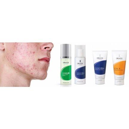 Mini acne peeling voor thuis
