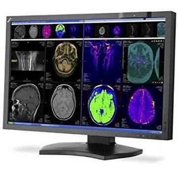 """NEC NEC MD302C4 29.8 """"4k Monitor con retroiluminación LED de pantalla ancha con pantalla médica"""