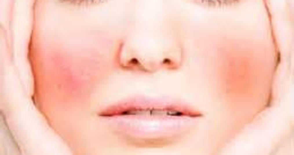 Drie symptomen van een gevoelige huid die je niet mag negeren