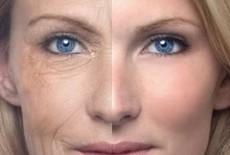 Zon is de hoofdoorzaak van huidveroudering