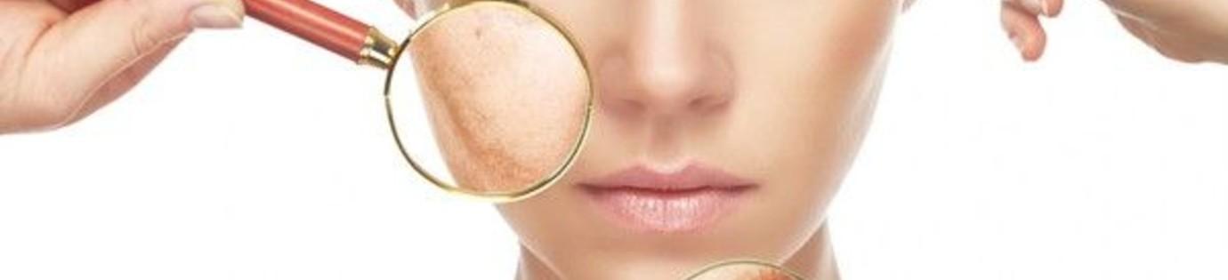 Een droge of gedehydrateerde huid?