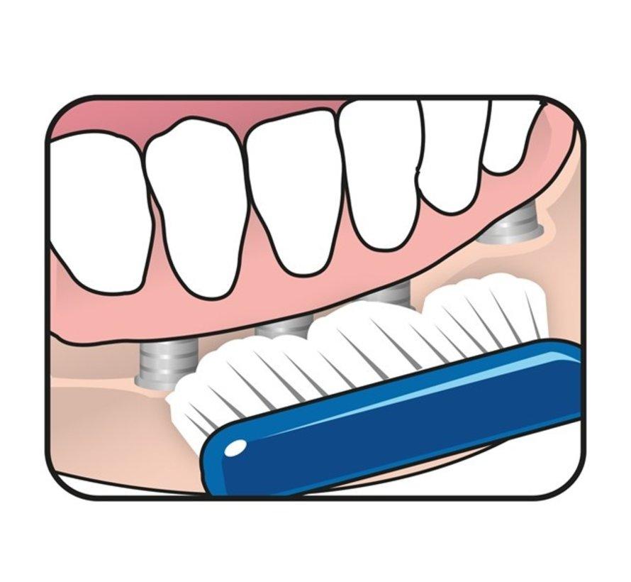TePe Implantaat/Orthodontieborstel - Specialistische Borstel - 3 stuks - Tandenborstel - Voordeelverpakking