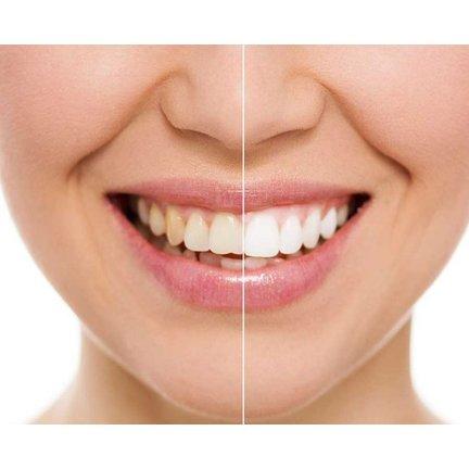 Opzetborstels voor wittere tanden