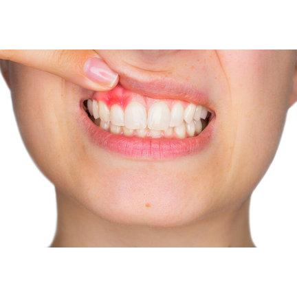 Opzetborstels voor ontstoken tandvlees