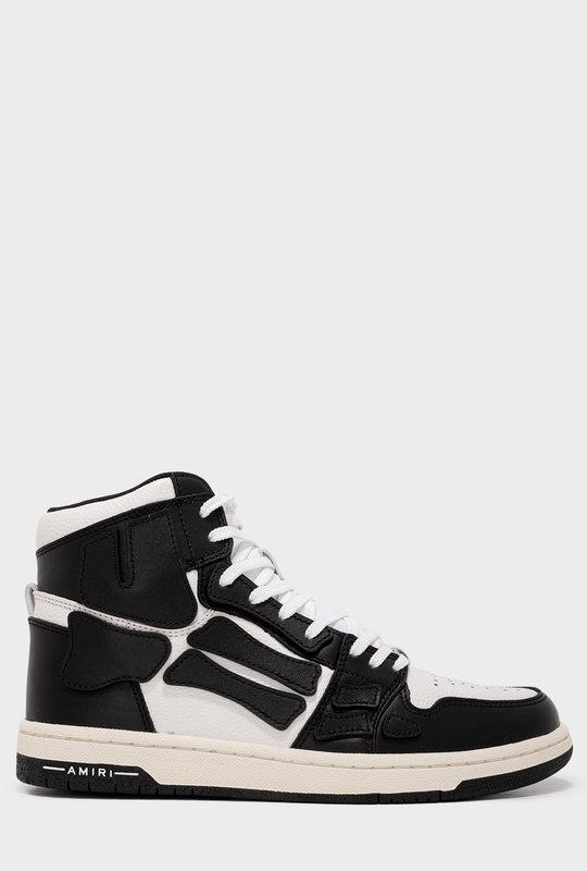 Skel High Top Sneakers Black