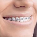 oral b Oral B Smart-series Teen - Elektrische Tandenborstel