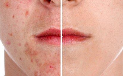 wat helpt tegen acne littekens