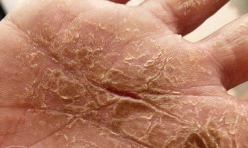 Handcreme tegen kloven