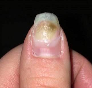 Help, een groene plek in de nagel!