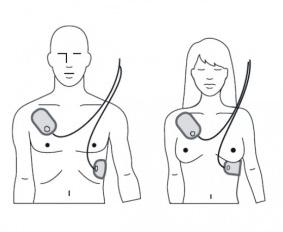 AED elektroden op het lichaam
