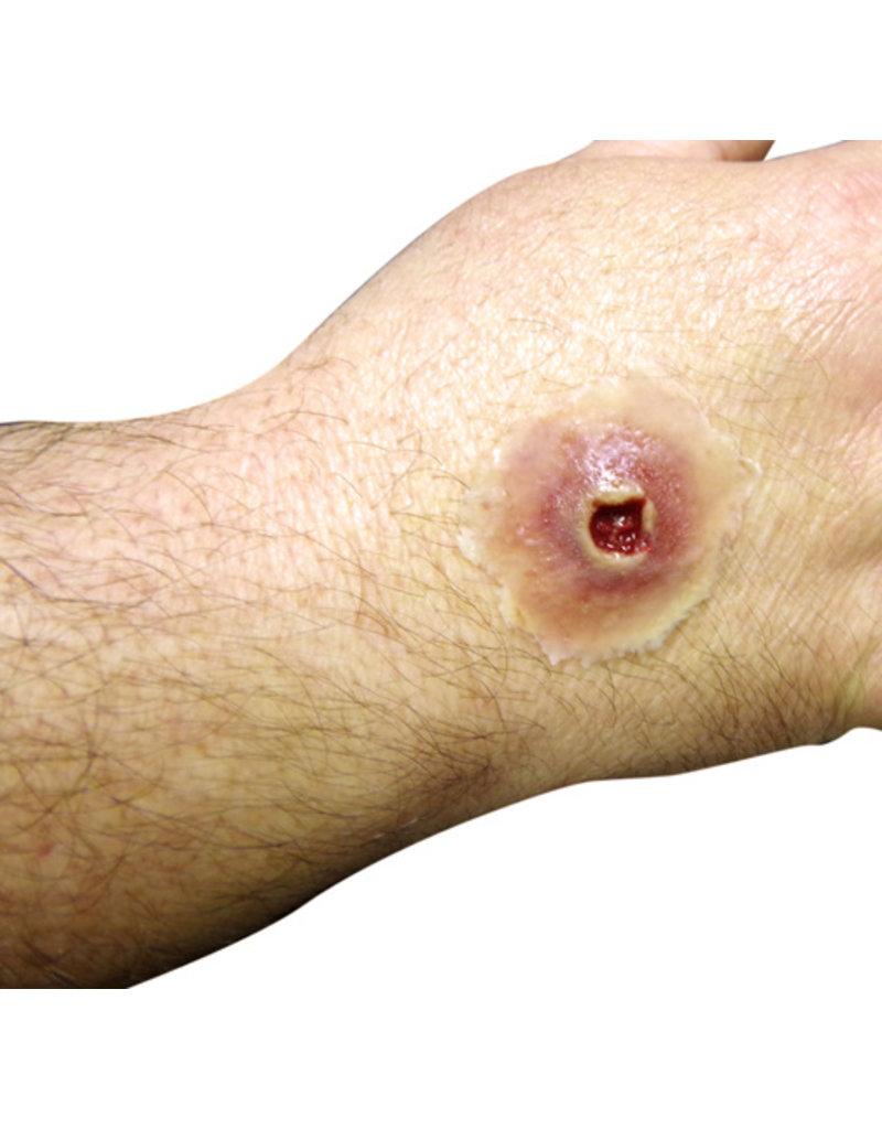 Techline Trauma Gunshot Wound (adhesive)