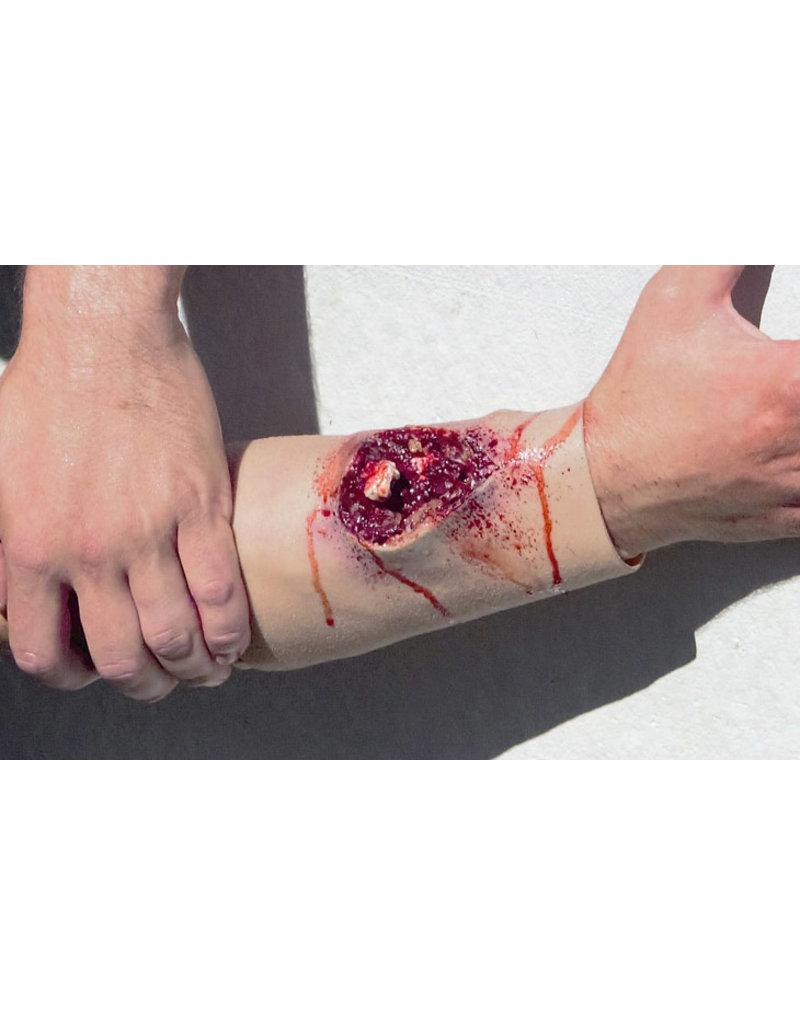 Techline Trauma Compound Fracture - Arm