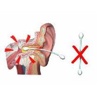 EarScratcher Ohrenschmalzentferner Ohrenschmalzstift - Farbe rot