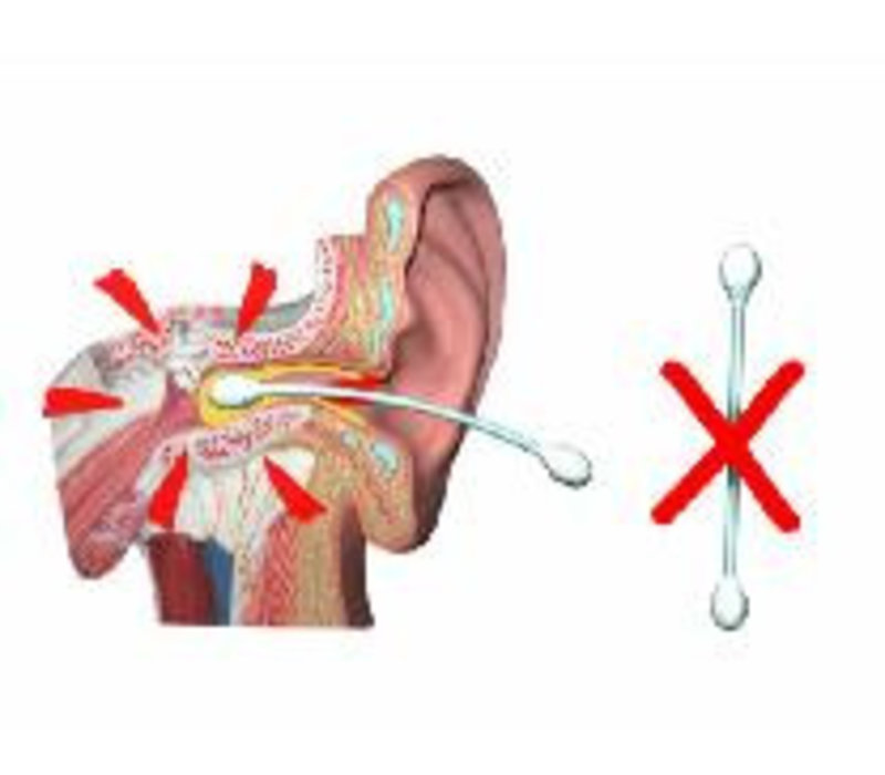 EarScratcher Earwax Remover - Cerumen pen - color red