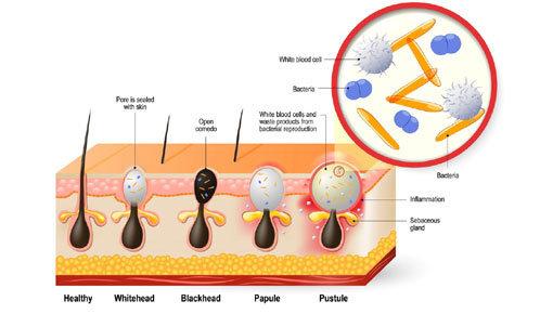 Behandeladvies acne