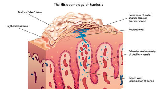 Behandeladvies psoriasis