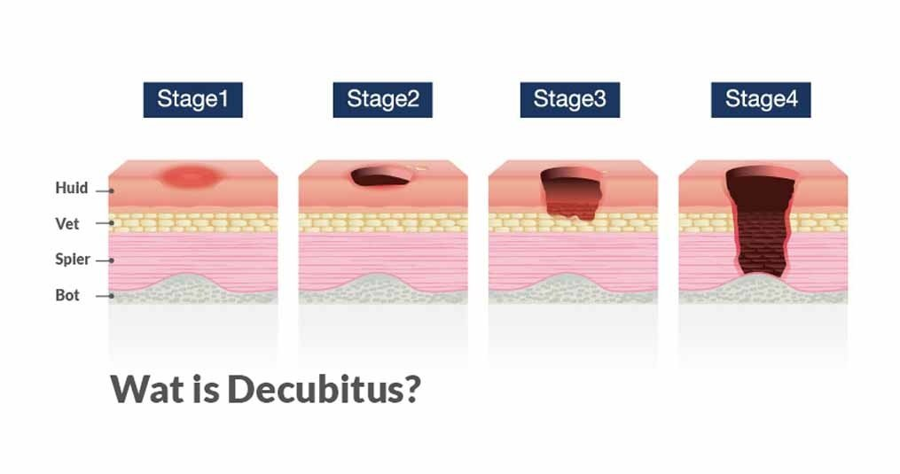 Wat is Decubitus?