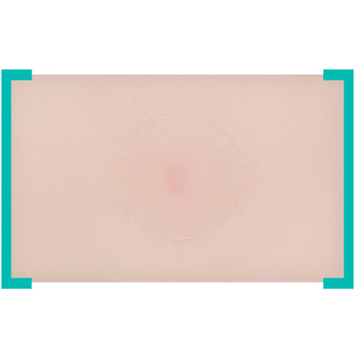 A'pieu Madecassoside Needle Spot Patch