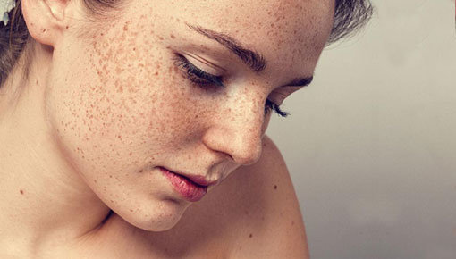 Taches pigmentaires: causes et traitement