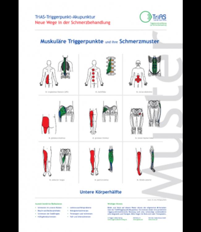Poster Triggerpunkt-Akupunktur Untere Körperhälfte