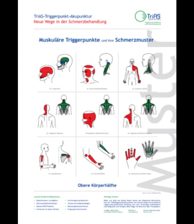 Poster Triggerpunkt-Akupunktur Obere Körperhälfte
