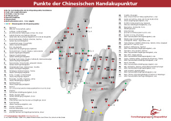 Akupunkturnadeln für die Handakupunktur