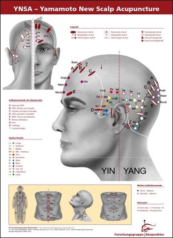 YNSA Schädelakupunktur Poster