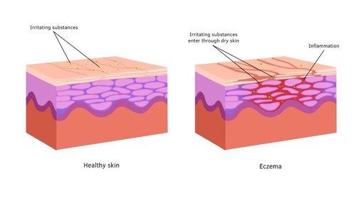 Treatment advice - Eczema