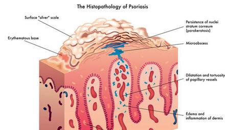 Treatment advice - Psoriasis
