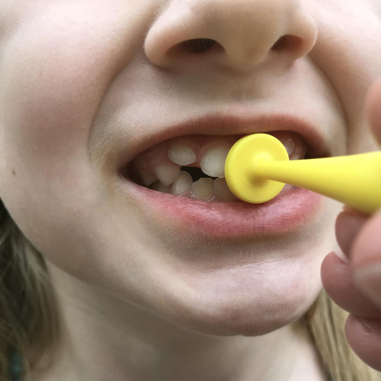 ARK-therapeutic ARK's proButton™ Set voor Lipsluiting en lipsterkte
