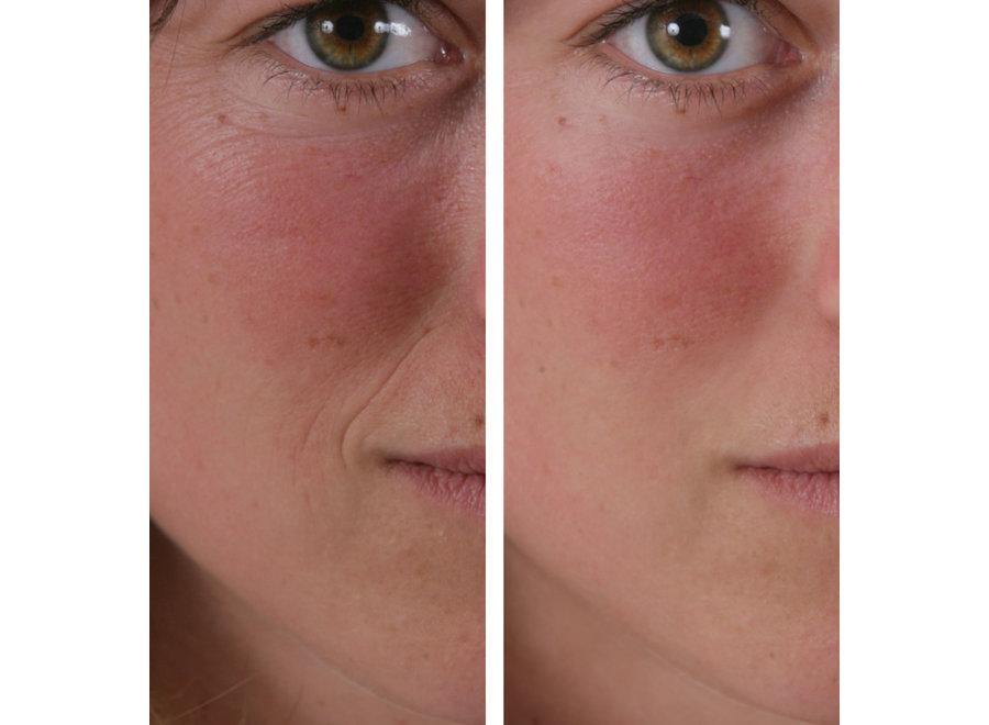 Wrinkle Filler Anti Rimpel Crème (15 ml) WRF001