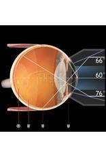 Volk 3-spiegel gonio fundus lens No Flange/Fluid AR coating