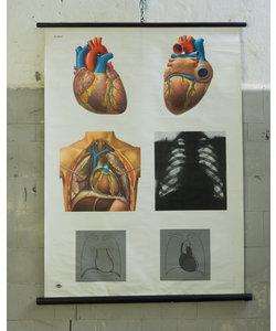 Anatomische schoolplaat - Hart No. 2