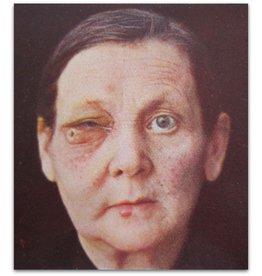 Dr. Julius K. Mayr - Die Erscheinungen an der Haut - 1926