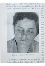 Dr. Julius K. Mayr - Die Erscheinungen an der Haut bei inneren Krankheiten einschliesslich der durch Behandlung bedingten Schädigungen. [...]