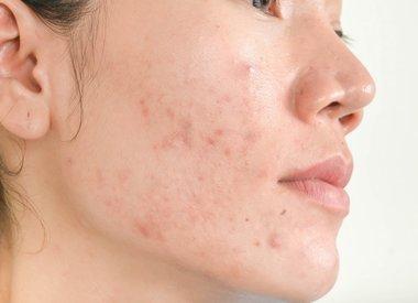 Onzuivere huid