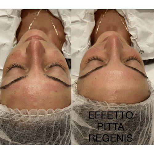 Lakshmi Pitta Regenesis H2O Reiniging (Aloe Vera) - Extreem gevoelige huid